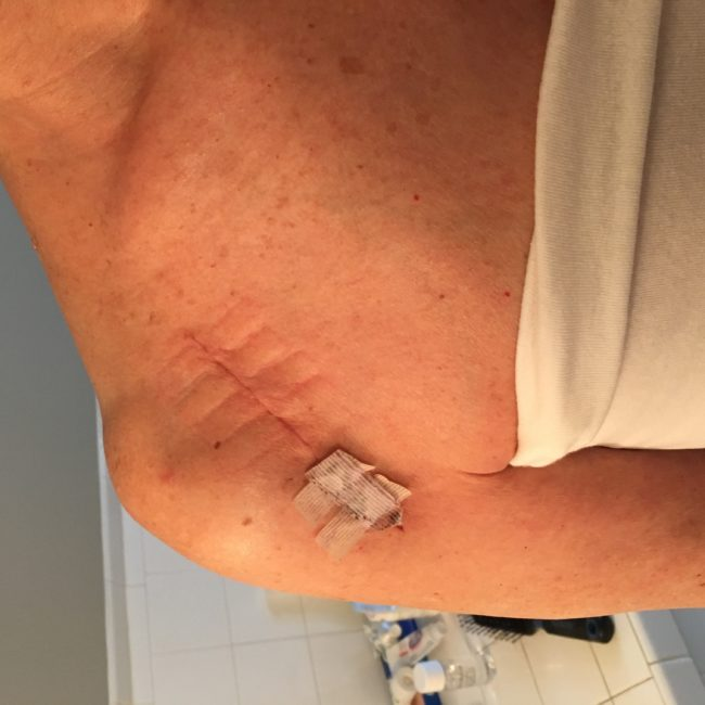 This is the scar from my shoulder replacement surgery, four weeks after the surgery.